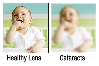 cataract_scene