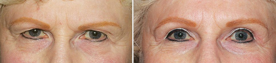 Blepharoplasty | Heaton Eye Associates